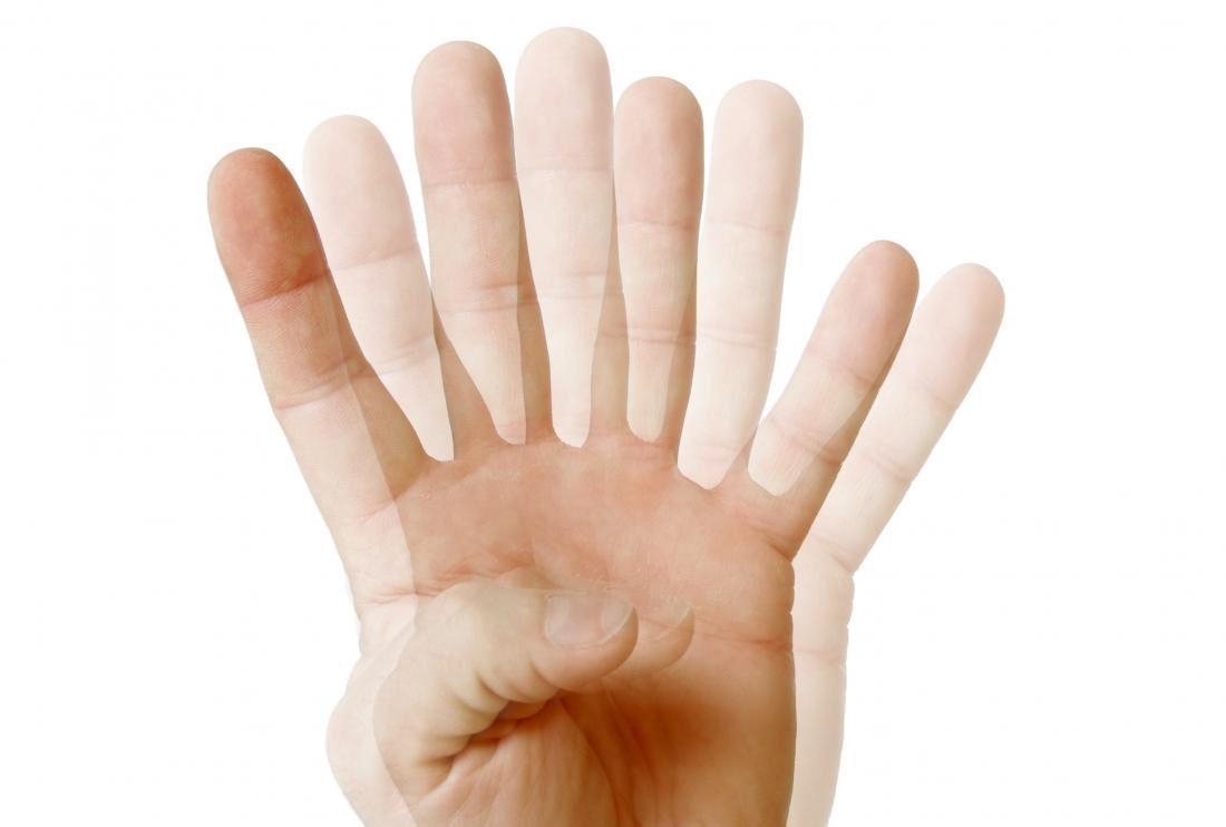 Nhìn đôi là dấu hiệu phổ biến trong giai đoạn đầu đục thủy tinh thể